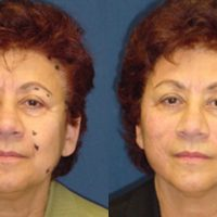A collage of photos of a patient before & after a Thread lift.