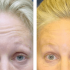 A collage of photos of a patient's forehead, showing the patient before and after a botox treatment.