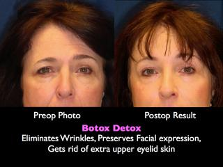 Botox Detox: The Browlift procedure
