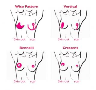 An illustration showing a breast scar comparison for various techniques.