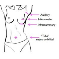 An illustration showing incision types for breast augmentation: inframammary, infraareolar, TUBA