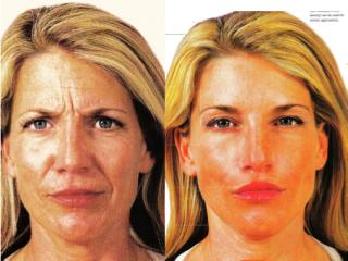 A collage of photos of a patient before & after a Liquid facelift.