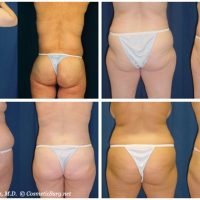 Before and after photos from patients who have had a body lift