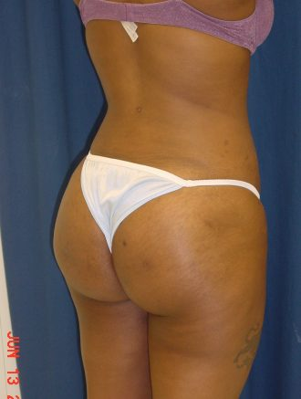 brazilian butt lift patient post op