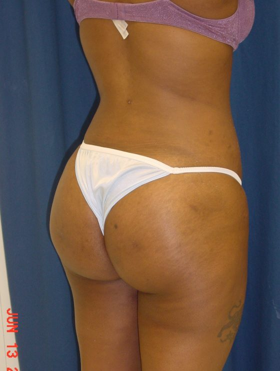 A pre op Brazilian butt lift patient.
