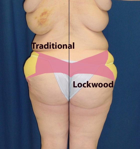 A photo of a patient's body, showing her body before and after a body lift procedure.