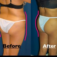 A composition photo of a patient's buttocks, showing the patient before and after a B'more butt lift.