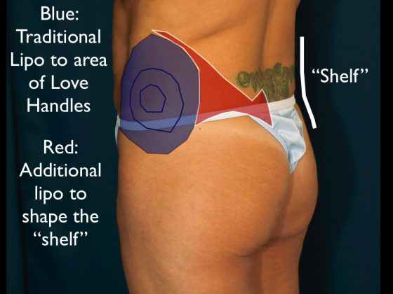 An illustration showing better lipo to love handles techniques.