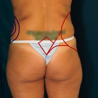 A photo of a patient's lower body, showing the areas (love handles) the liposuction procedure will improve.