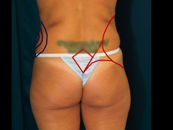 An illustration showing preoperative markings for a lipo to love handles procedure.