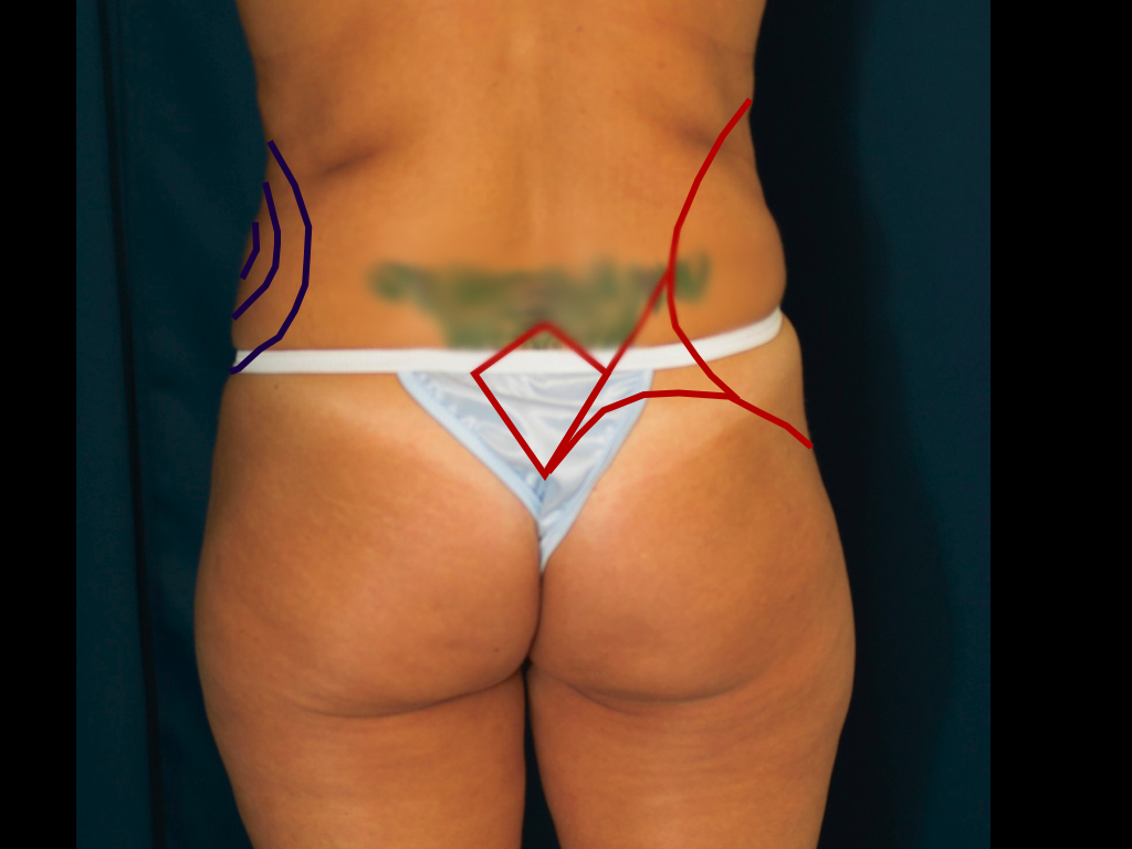 Blue- markings for lipo to love handles. Red- markings for reshaping waist
