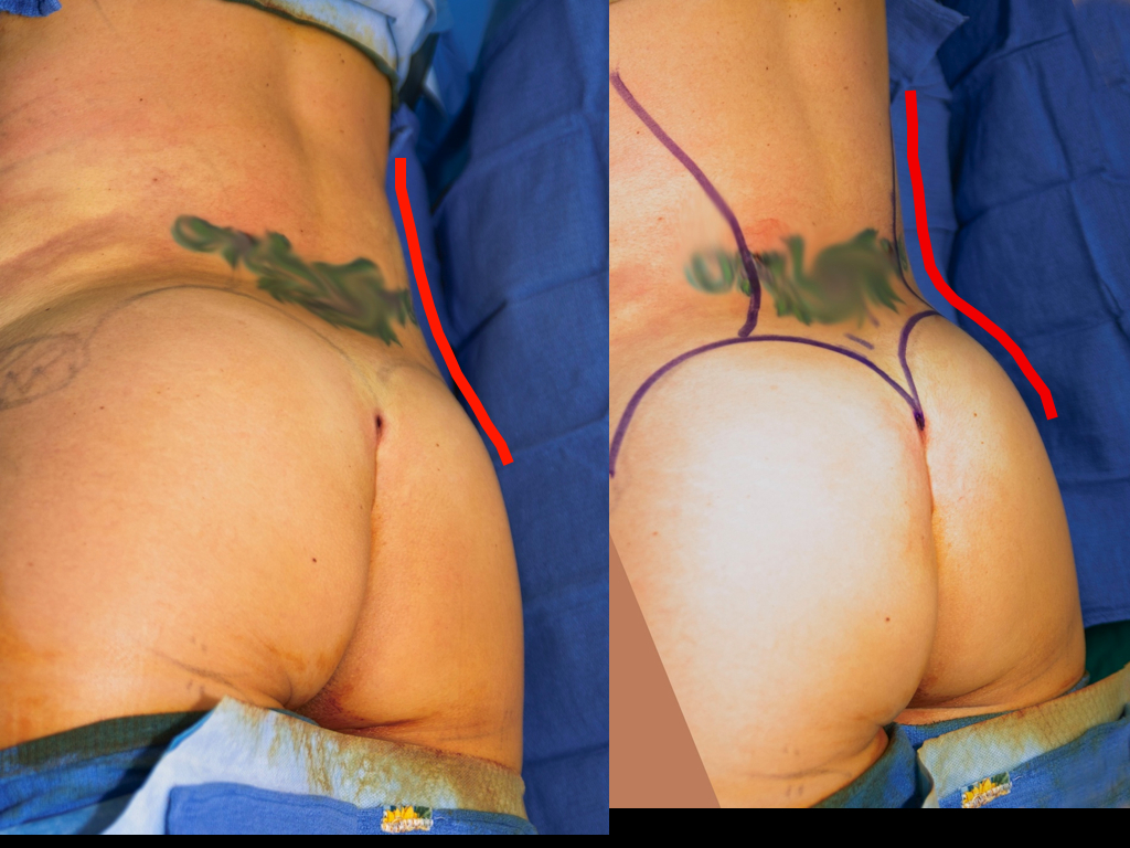 Red line follows waist contour before (left) and after (right) lipo