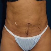 A photo of a patient's belly, highlighting the problematic areas as well as where the doctor will make incisions.