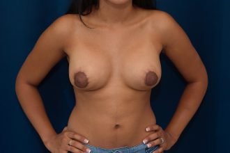 Breast Augmentation and Lift for correction of Tubular Breast