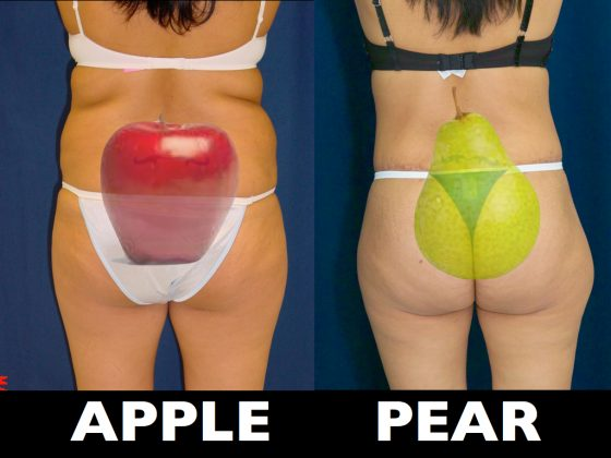 A collage of patients photos illustrating apple and pear shaped bodies.