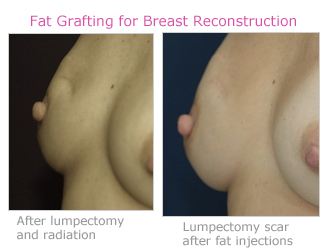 fat-grafting-for-breast-reconstruction