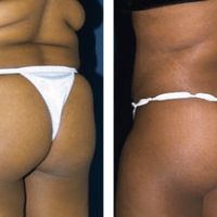 A collage of photos, show a patient's lower body before and after a Brazilian butt lift.