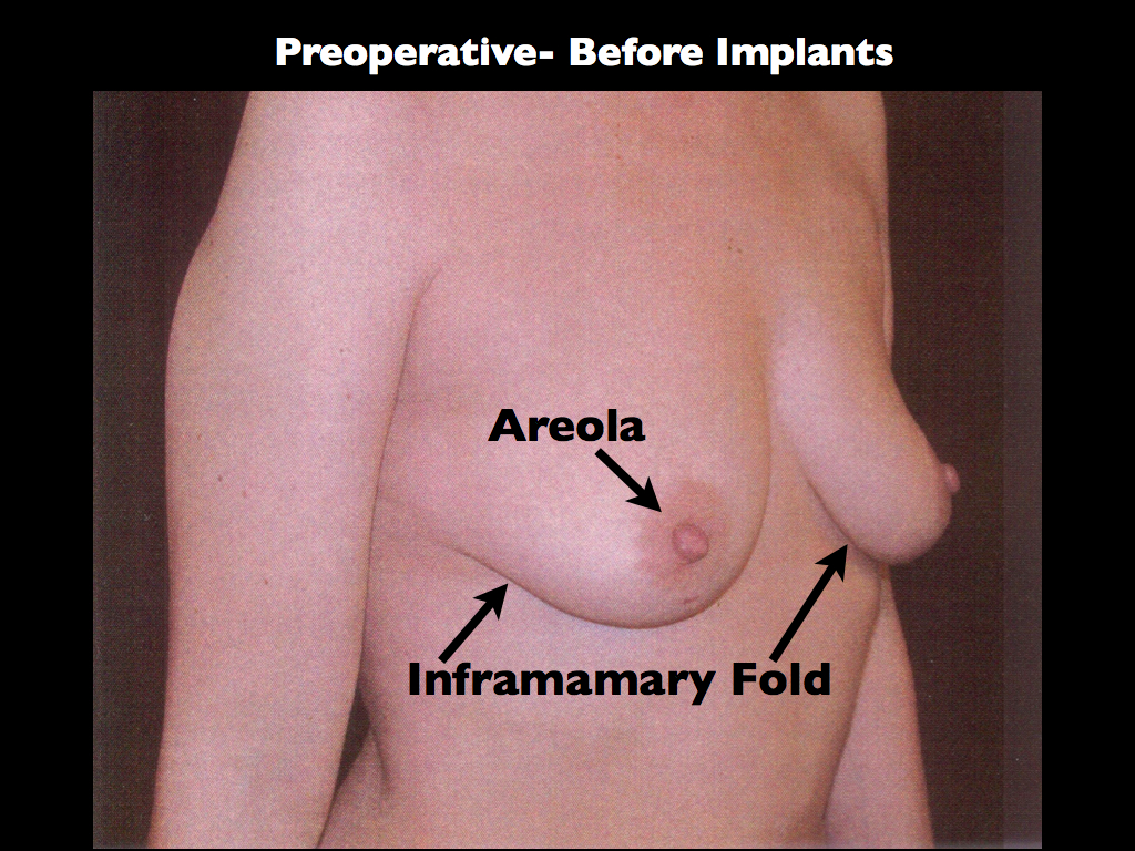 Before Breast Aug with Lift