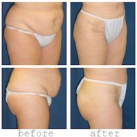 A collage of photos from different angles of a patient before and after a Tummy tuck procedure.