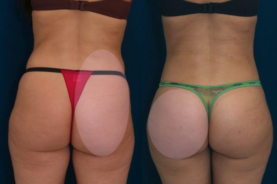 A collage of photos (back view) of a patient before and after a Brazilian butt lift procedure.