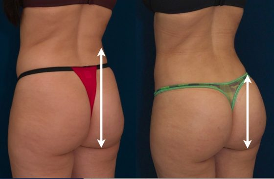 A collage of photos (side view) of a patient before and after a Brazilian butt lift procedure.