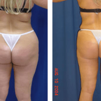 A collage of photos of a patient's lower body before & after a Liposuction procedure.