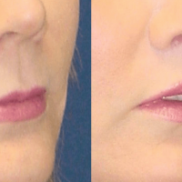 A collage of photos of a patient before & after a Upper lip lift procedure.