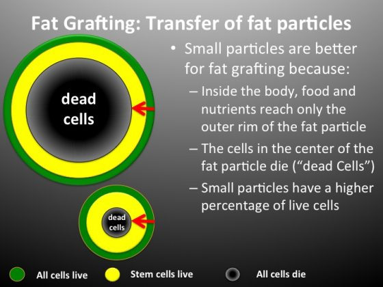 An illustrating showing the reasons why small particles are better for fat grafting.