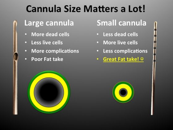 An illustration showing how cannula hole size matters to the longevity of the fat graft.