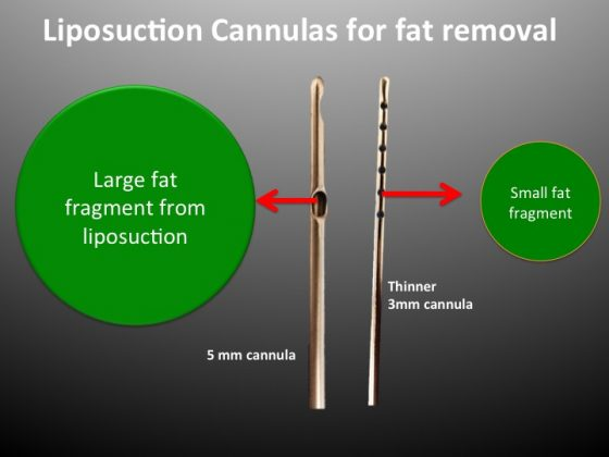 An illustration showing why thin cannulas with 1mm holes are best for fat grafting.