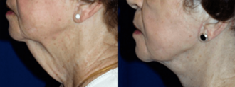 Before & after photos of a Lower rhytidectomy which includes bands plus tightening jowls.