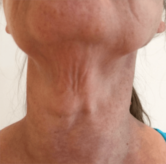 Photo of bands in the neck that can be addressed with a Platysmaplasty or Neck tuck.