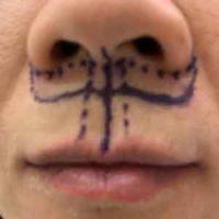 Pre-op lip lift markings on a patient's face.