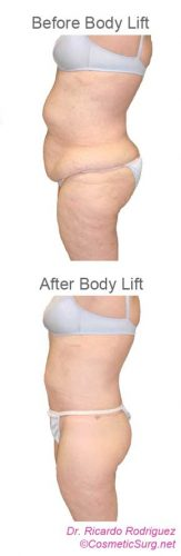 Before & after body lift profile photo.