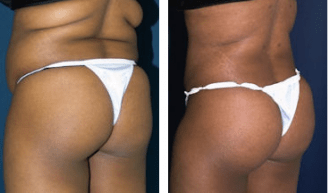 A collage of photos of a patient's lower body, showing her before and after a Brazilian butt lift procedure.