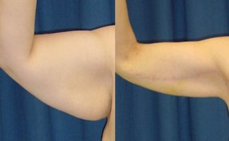 Before and after photo of an actual Arm Lift patient.