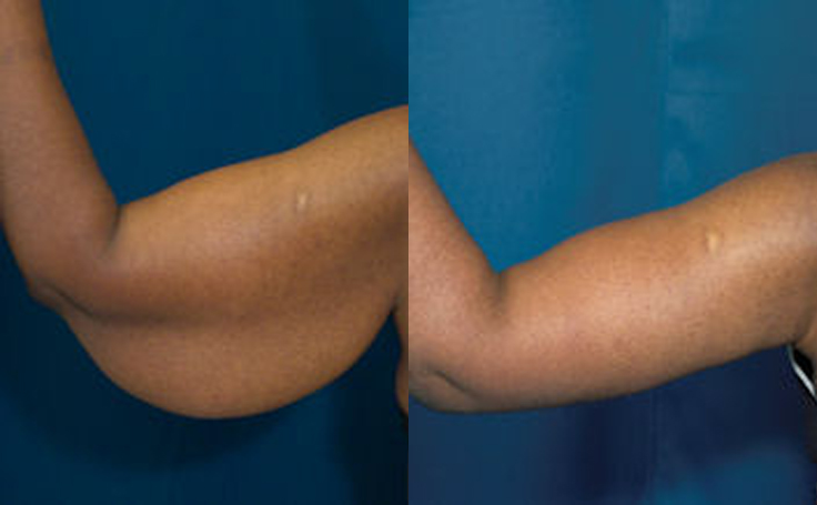 excess skin after weight loss arms