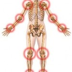 An illustration of the human body pointing out points of Arthritis.
