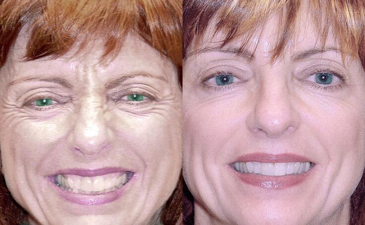 Botox Injections Around the Eyes