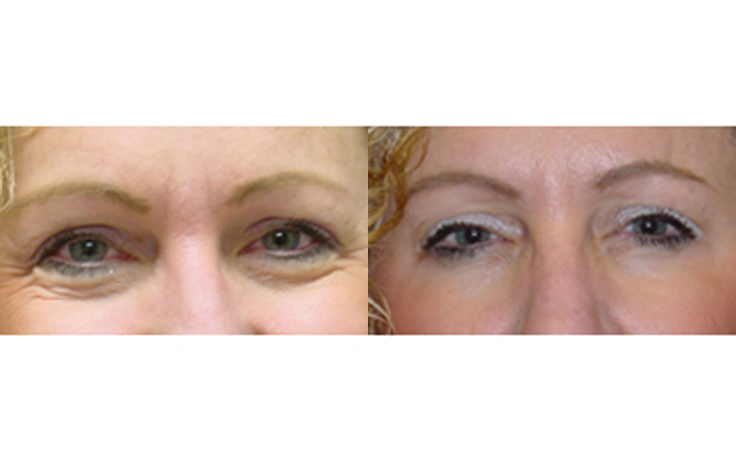 Botox Injections Around Eyes and Between Eyebrows