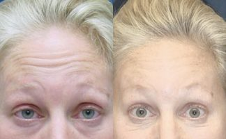 Before and after photo of an actual Botox Injections patient.