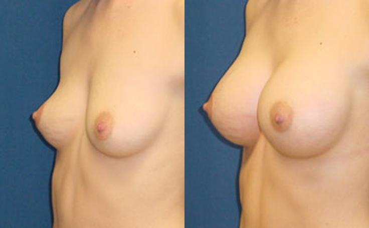 360cc Saline Implants (angle view)