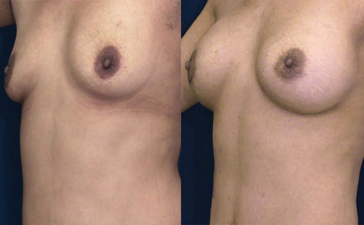 Breast Augmentation with  XXX (angle view)