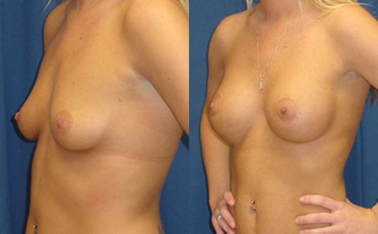 Silicon Breast Implants (angle view)