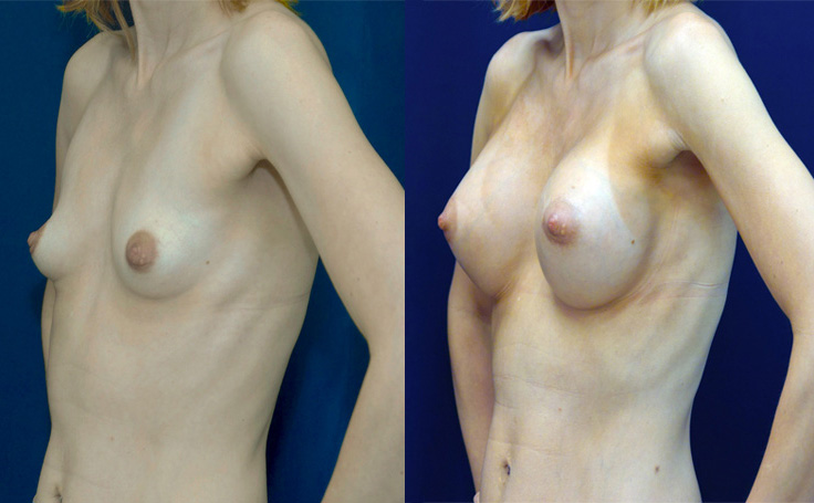 Pussy Amazing maryland facial liposuction love this