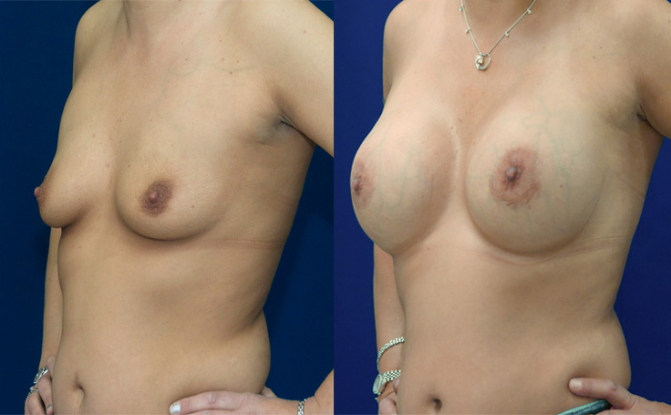Breast Augmentation with  650 cc high profile implants (angle view)