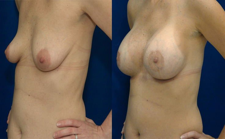 Breast Augmentation with High Profile Saline 480 cc (angle view)