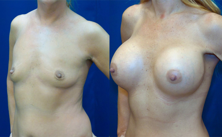 Video sexy maryland facial liposuction love how