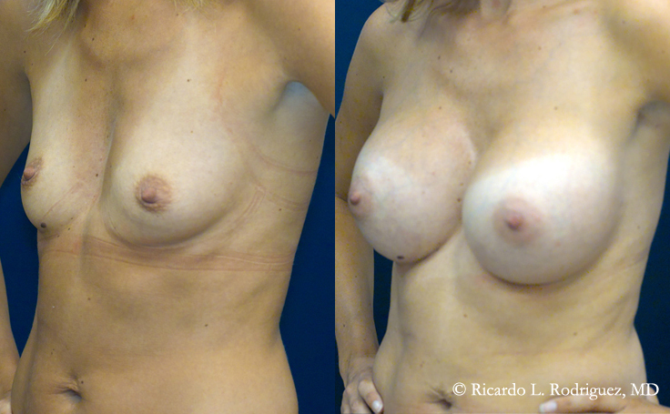 Before and After Breast Augmentation to address Slight Asymmetry