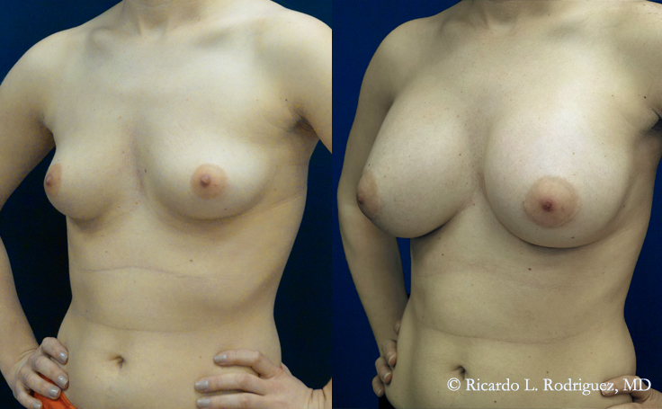 Before and After Breast Aug with 450 cc silicone implants (infra-areolar)